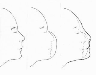 Lifemask Procedure